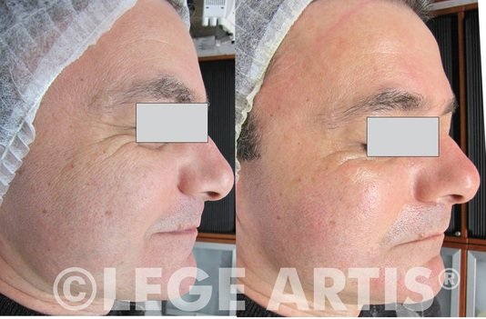 Before and After: NeoBright Results