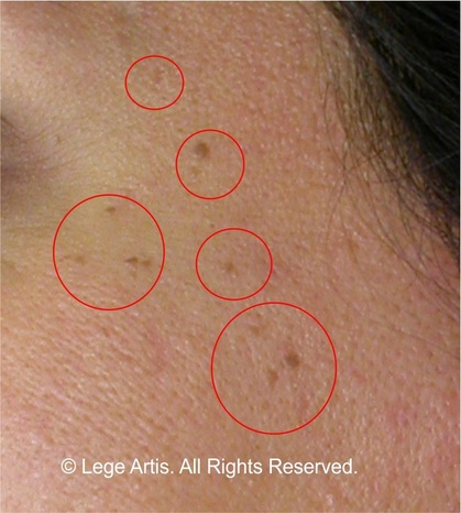 Skin Tag Removal result at Lege Artis Toronto Laser Clinic less than one month after the procedure. Small skin tags on the face can be removed fast, no scars left.