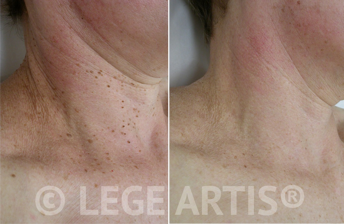 Multiple skin tags removal on the face and neck in our Toronto Laser Clinic. Notice smooth skin, no scars.