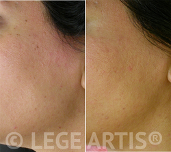 Skin Tag Removal result at our Toronto Laser Clinic less than one month after the procedure.