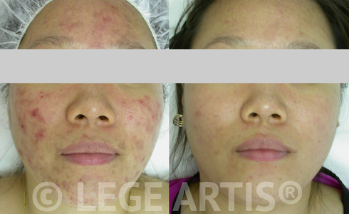 Inflammatory acne. A course of Lege Artis Acne Toronto Clinic Signature Deep Cleansing Facials with Omnilux Light Therapy proved helpful in this case.