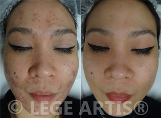 Before and after photo of LHE Acne results