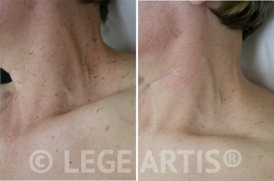 Multiple skin tags on the face and neck can be permanently removed without scarring at our Toronto Laser Clinic.