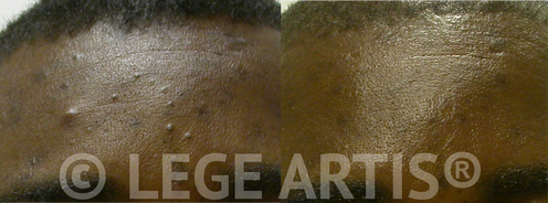 Acne in dark skin: faded hyper pigmentation and smoother skin after 3 Lege Artis® Acne Toronto Clinic Signature Deep Cleansing Facials, combined with Omnilux Light Therapy