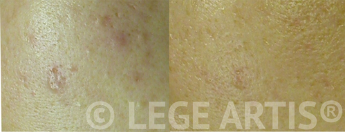 A single session of Lege Artis Acne Toronto Clinic Signature Deep Cleansing Facial , followed by a single session of V-beam Laser Acne Scar Therapy delivered pore clearing, redness reduction as well as post- acne scar texture smoothening.
