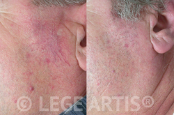 Before and After. Results after series of 3 Vbeam Laser Therapy sessions for facial redness and thread veins.