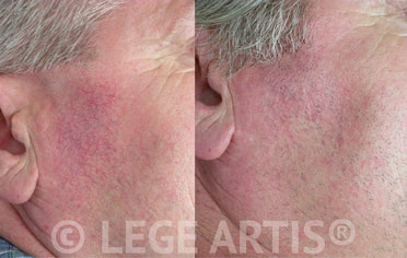 Results after series of 3 Vbeam Laser Therapy sessions for facial redness and enlarged skin capillaries (thread veins).