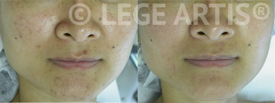 Acne and post acne pigmentation and scar removal at Lege Artis Acne Toronto Laser Clinic.