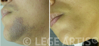 Laser hair removal on female upper lip, chin and neck areas also helped to clear pigmentation and scarring caused by ingrown hair and tweezing. Results at Lege Artis Laser Hair Removal Toronto Clinc.