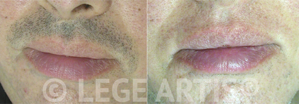 Lege Artis Laser Hair Removal Toronto Clinic results on male upper lip/moustache.
