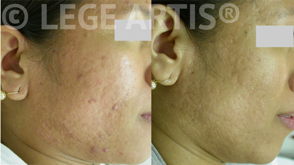 Laser acne treatment and skin peels for acne-prone skin at Lege Artis Acne Toronto Laser Clinic.