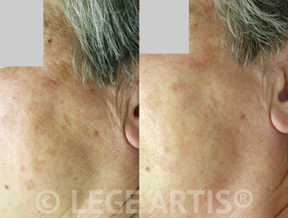 Wrinkles, age and sun spots removal at Lege Artis Toronto Laser Clinic.