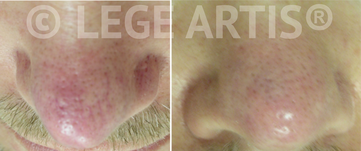 Redness, rosacea, nose veins removal with Vbeam laser treatment at Lege Artis Rosacea Toronto Laser Clinic.