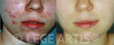 Acne and acne scars laser treatment on female face at Lege Artis Acne Toronto Cinic.