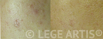 Acne, blackheads, acne scars laser treatment results at Lege Artis Acne Toronto Laser Clinic.