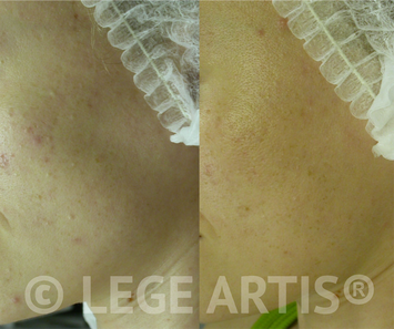 Acne, blackheads, acne scars laser treatment results at Lege Artis Acne Toronto Clinic.