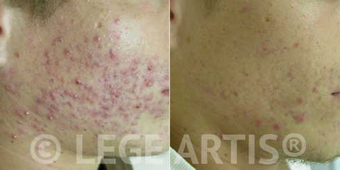 LHE IPL Acne Toronto Clearance results. Before: the client just finished a course of antibiotics without much success. After: follow-up 6 months after the last LHE Acne Clearance treatment.