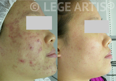 Facial and Light Therapy results for acne and acne scars at Lege Artis Acne Toronto Clinic.